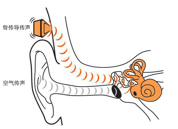 骨传导耳机真的不损伤听力吗?能否为耳机摘掉损伤听...