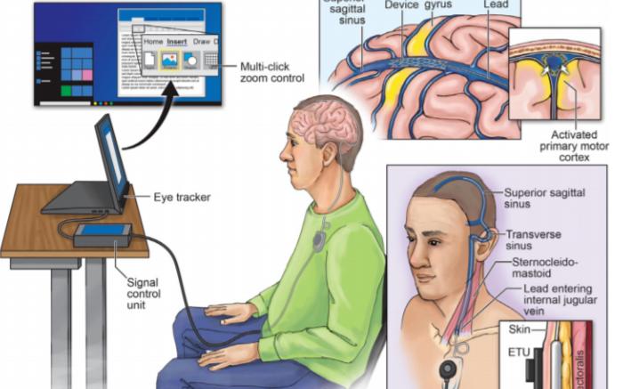 新型脑机接口问世,直接通过患者大脑控制电脑
