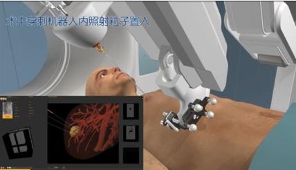 什么是肿瘤粒子介入机器人