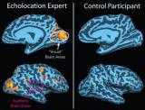 大脑功能的可塑性和功能重组,从听觉角度,进行简要介绍
