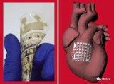 研究人员开发了一种与心脏组织的机械柔软度相匹配的心脏贴片