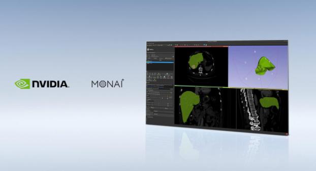 MONAI成像框架快速投入生产,加速医疗健康领域的AI应用