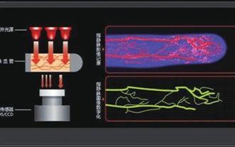 靜脈識別技術