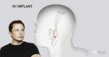 Neuralink脑机芯片可能在今年进行人体试验