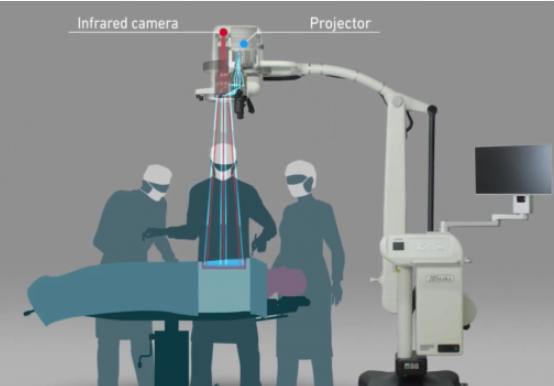 松下成功研发新型红外医学成像投影系统