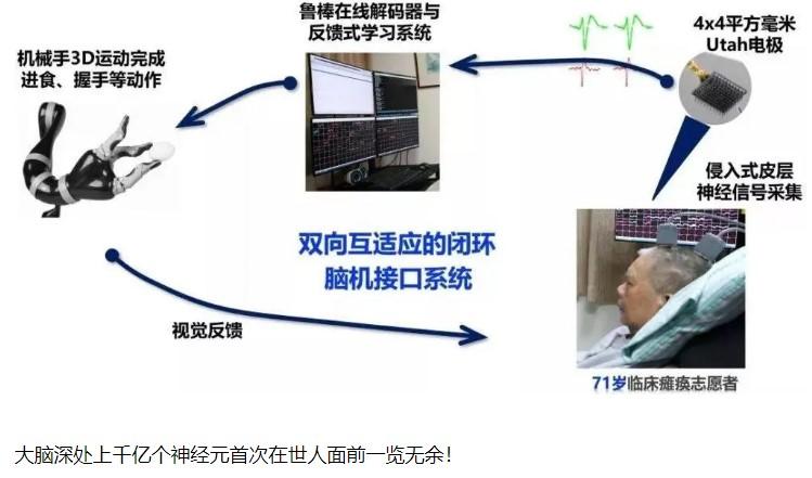 浙江大学将识别感知神经元的智能机器人送到大脑深处