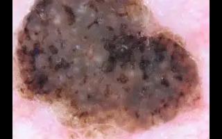 AI在用智能手機相機拍攝的照片上標記可能的皮膚癌
