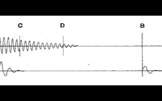 基于數字信號處理器實現動液面深度測試儀的設計